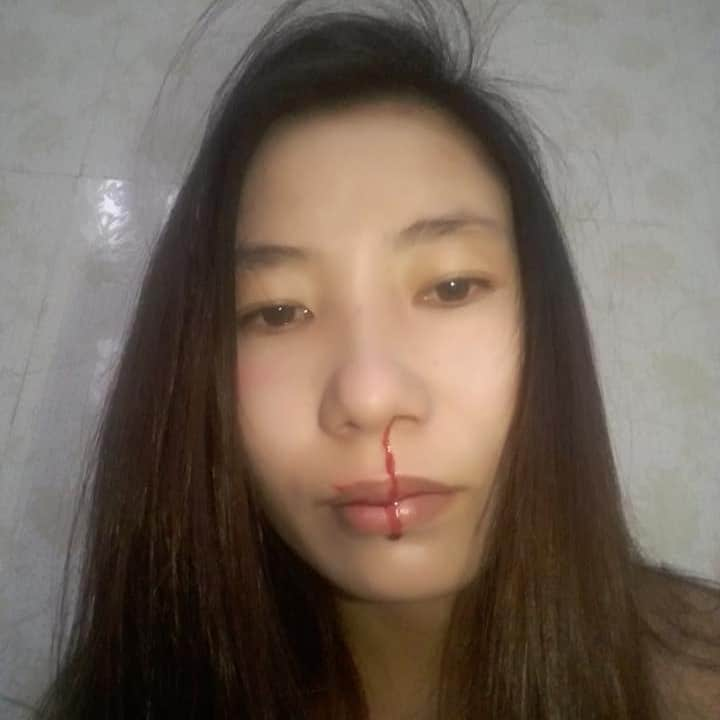 Thu Le_bloody nose after attack